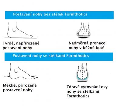 postavení nohy formthotics1